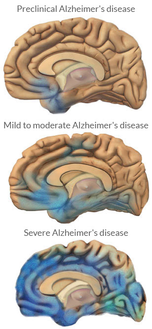 the stages of alzheimers disease essay Learn about the seven stages of alzheimer's disease from the beginning of the illness through its end.